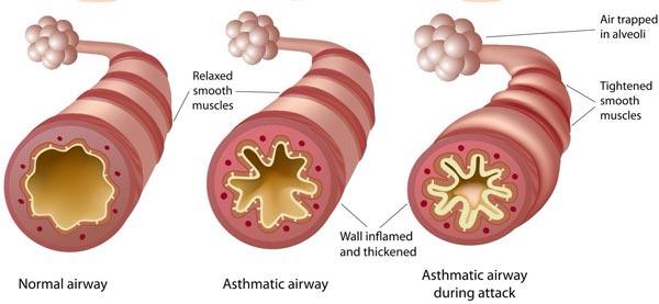 Asthma-diagram.jpg